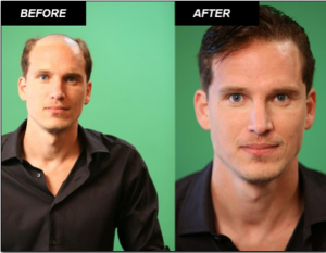 Hair Loss Treatment Clinic