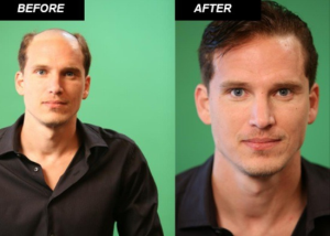 Hair Loss Treatment Dubai UAE