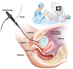 Cystoscopy in NYC