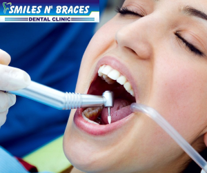 Braces in Lucknow