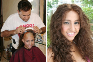 Non Surgical Hair Replacement For Women Dubai