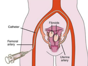 Uterine Fibroid Treatments