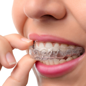 Invisalign Invisible Braces in Dubai