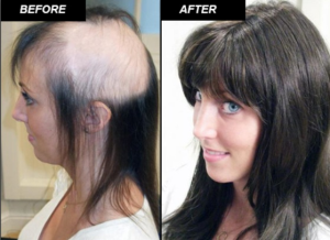 Non Surgical Hair Replacement Clinic Dubai