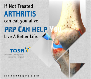 PRP For Arthritis Treatment