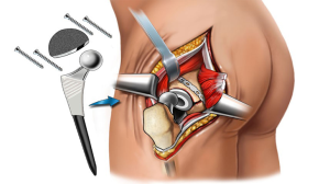 Hip Replacement Surgery options in India