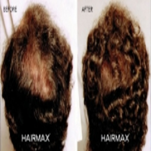 Male Hair Fall Treatment