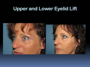 Eyelid Surgery Rapid City SD