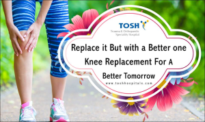 Knee Replacement Surgery Treatment