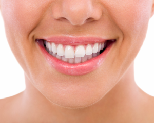 Teeth Cleaning Melbourne