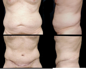 Abdominoplasty Procedure - Tummy Tuck Surgery in Pasadena: Dr. Lakshman