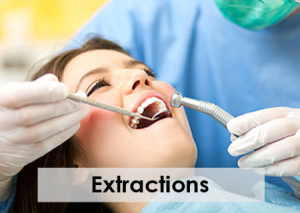 Extraction - Greenbelt oral & facial surgery