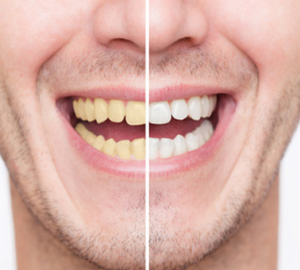 Teeth Whitening Services in Dubai