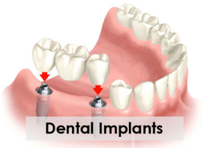 How Can Dental Implants Help My Smile?