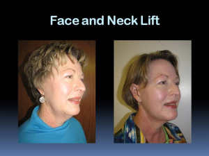 Face and Neck Lift Rapid City SD
