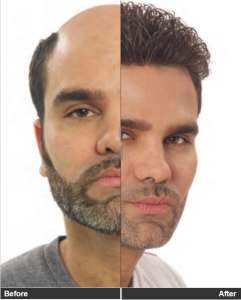 Male Hair Baldness Treatment