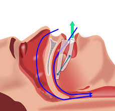 Sleep Apnea/ OSA Disorder Treatment at Greenbelt Surgery