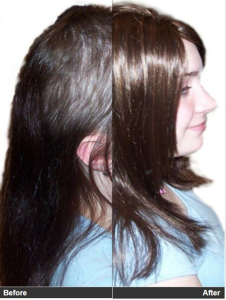 Natural Female Hair Loss Treatment