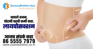 Liposuction | Cosmed Clinic