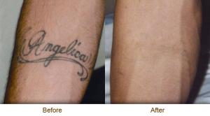 tattoo removal treatments