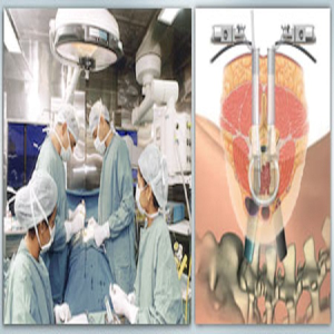 Spinal Fusion Surgery India promises High quality back pain treatment with low cost services