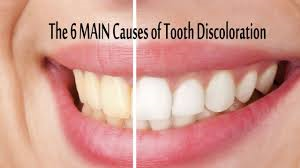DISCOLOURED TOOTH