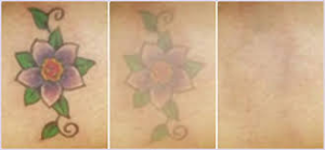 Tattoo Removal Treatments in Mumbai - Aesthetic Clinic