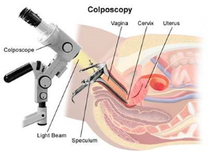 Colposcopy in NYC