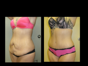 Tummy Tuck Rapid City SD