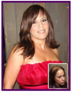 Non Surgical Hair Replacement for Ladies