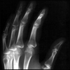 My hand, x-rayed