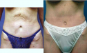 Redo abdominoplasty tummy tuck can improve your result if previous abdominoplasty has left you with unsightly scars or residual hanging skin.