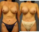 Capsulectomy - capsule removal - and implant replacement for breast implant rupture or capsule contracture can create a more natural looking breast.