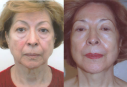 A face lift neck lift plastic surgery scan diminish the marks of time from your face and produce a more youthful looking you.
