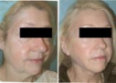San Francisco's premier face lift plastic surgeon Dr. Usha Rajagopal. Over 14 yrs experience performing facelift surgery. Free consult. View before after photos.