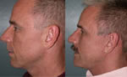 Highly skilled plastic surgeon Dr. Rajagopal specializes in neck in Bay Area, San Francisco.