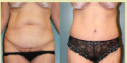 Remove excess skin & fat from your abdomen. Schedule a Free Consult with Highly Skilled, Board Certified Plastic Surgeon. 15 yrs exp. View photos, prices. As seen on TV.