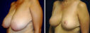 Breast Reduction Case 1 - Breast Reduction This 60 year old women was plagued with breasts that pulled on her back and shoulders while also making her