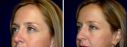 Rhinoplasty Case 1 - Rhinoplasty This 32 year old was unhappy with the appearance of her nose. She felt she had a small hump and lacked definition of