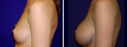 View before and after photos of patients who have undergone breast augmentation with implants at the practice of Dr. Paul Pin.