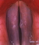 Vocal Polyps and Nodules. Confronted with symptoms of dysphonia, the clinician is charged with accurate diagnosis and timely institution of appropriate therapeutic intervention.
