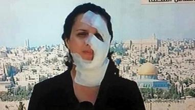 Periodista libanesa resulta herida tras ataque del ejército de Israel