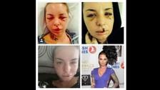 Facebook: Christy Mack y su increíble recuperación tras agresión de peleador de MMA