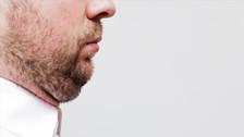 4 factores que favorecen la aparición de papada