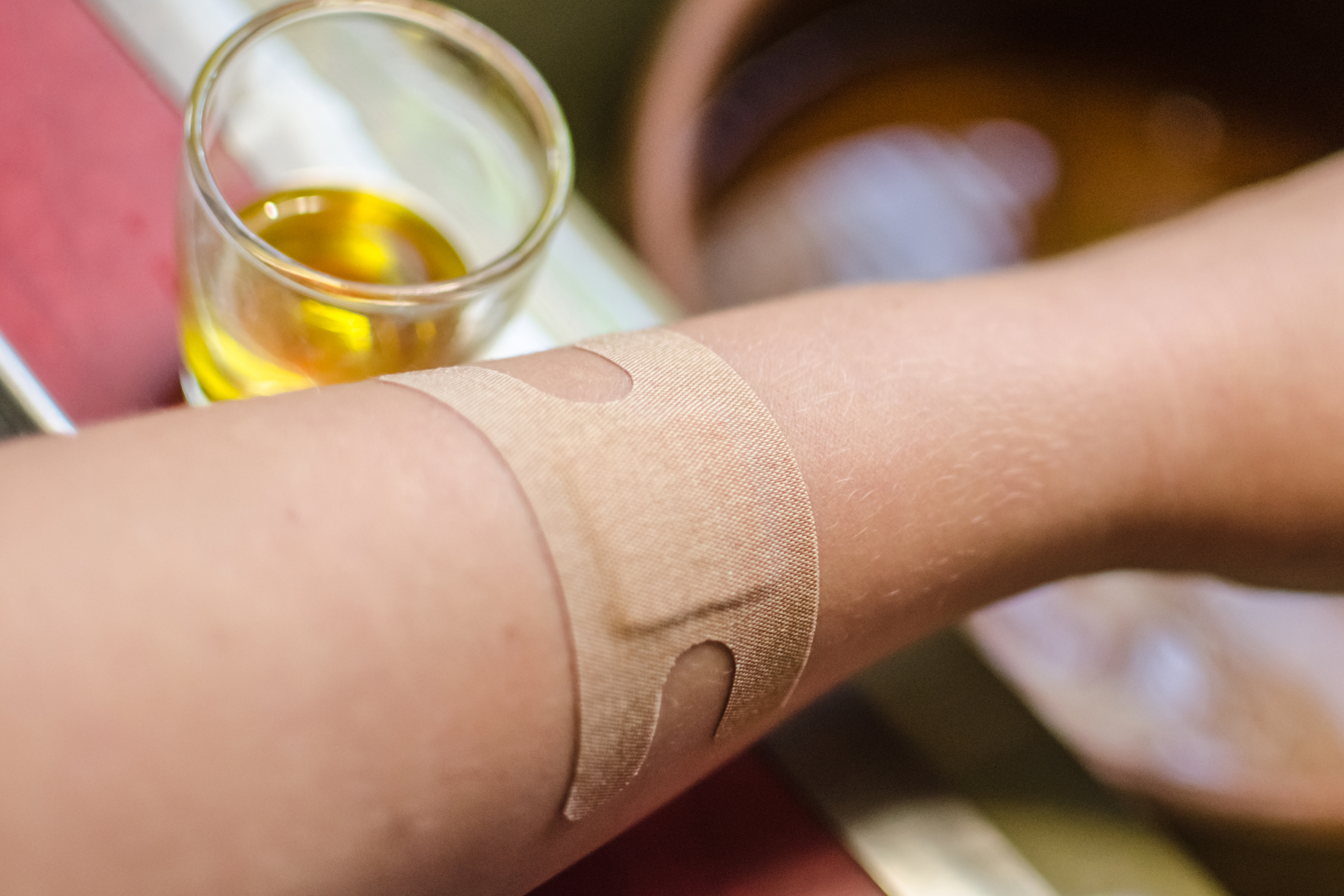 Home Remedy for Hot Wax Burn | Healthfully