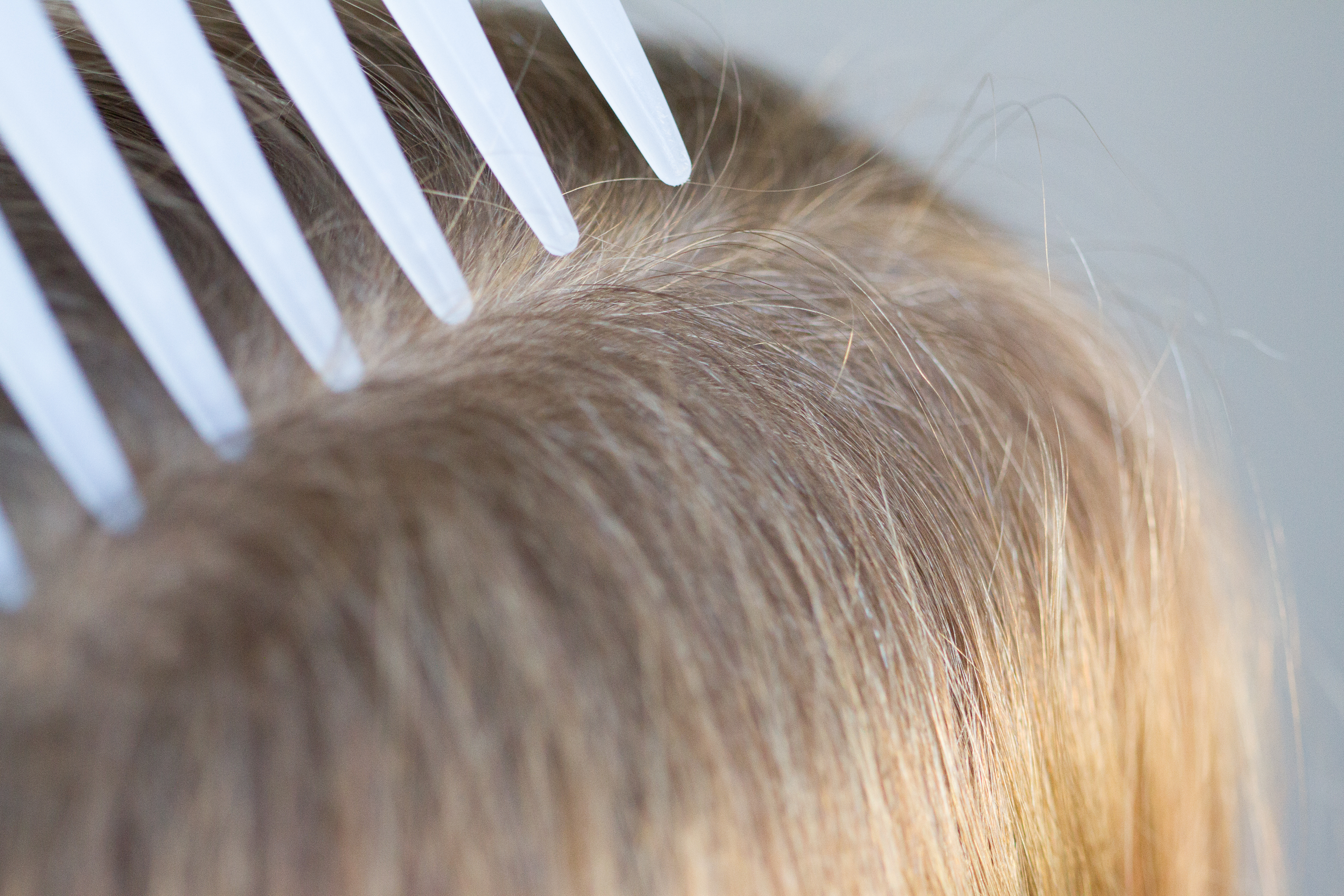How To Clean Hair Brushes Lice Healthfully