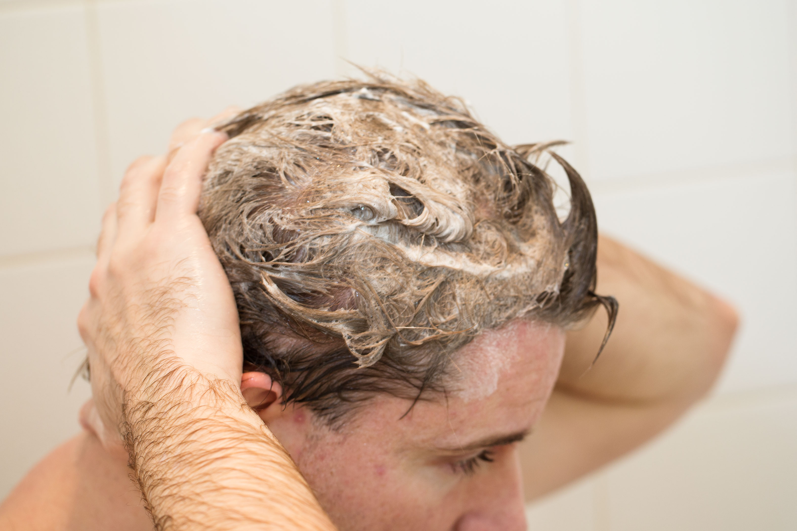 Peeling of the scalp at home 40