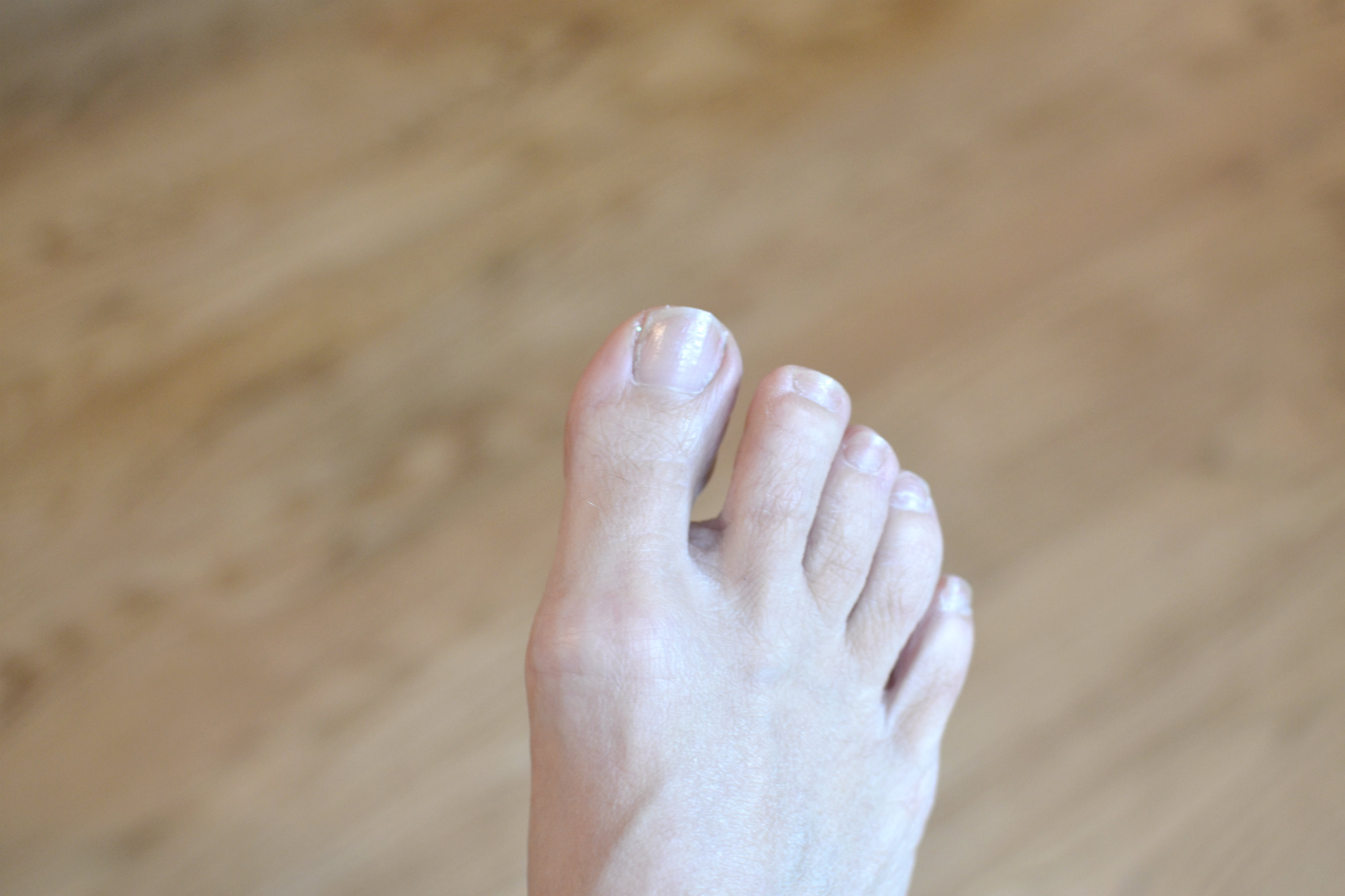 The Quickest Way to Get a Dead Toe Nail to Come Off | LEAFtv