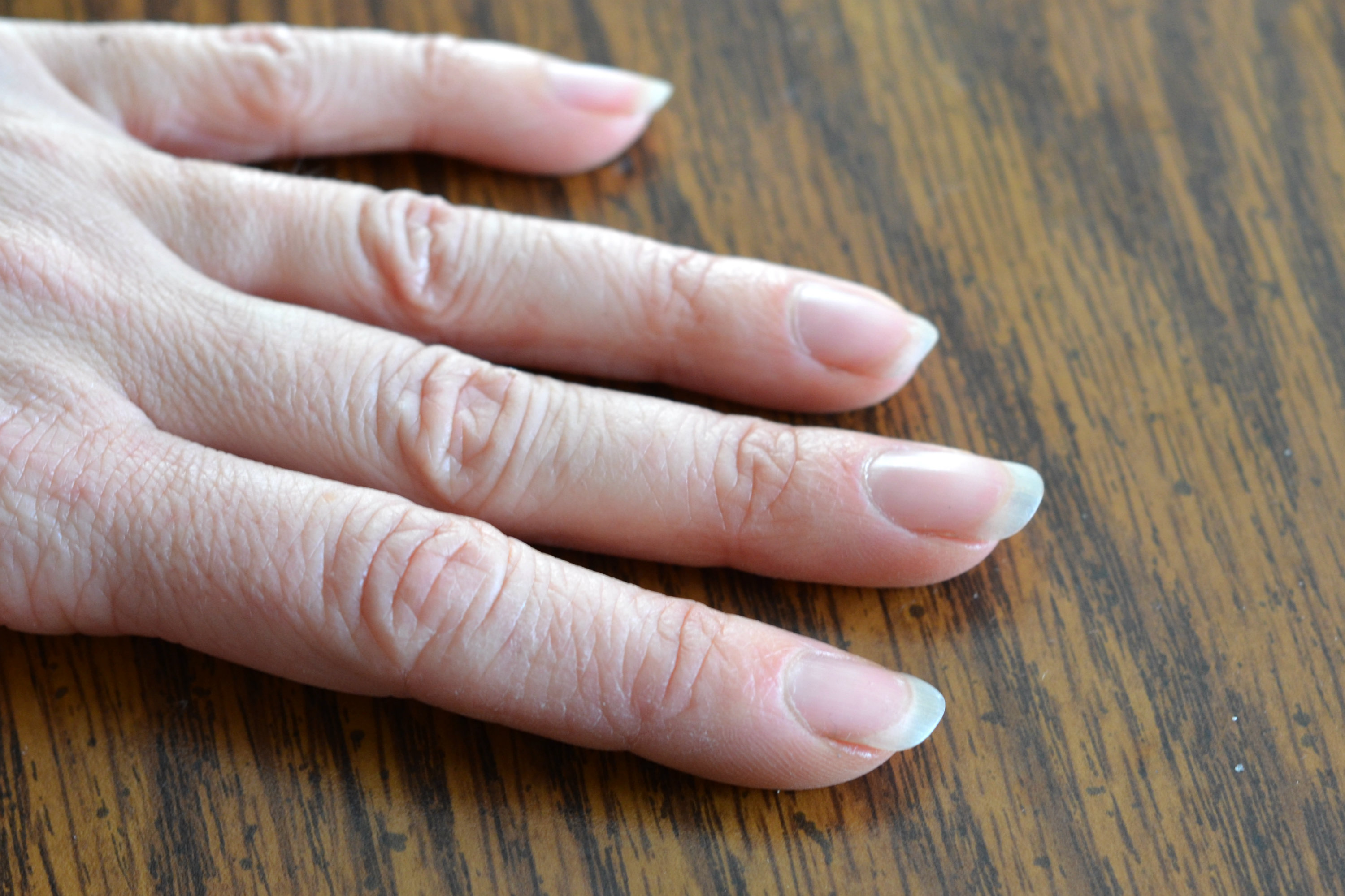 What causes dry cuticles?