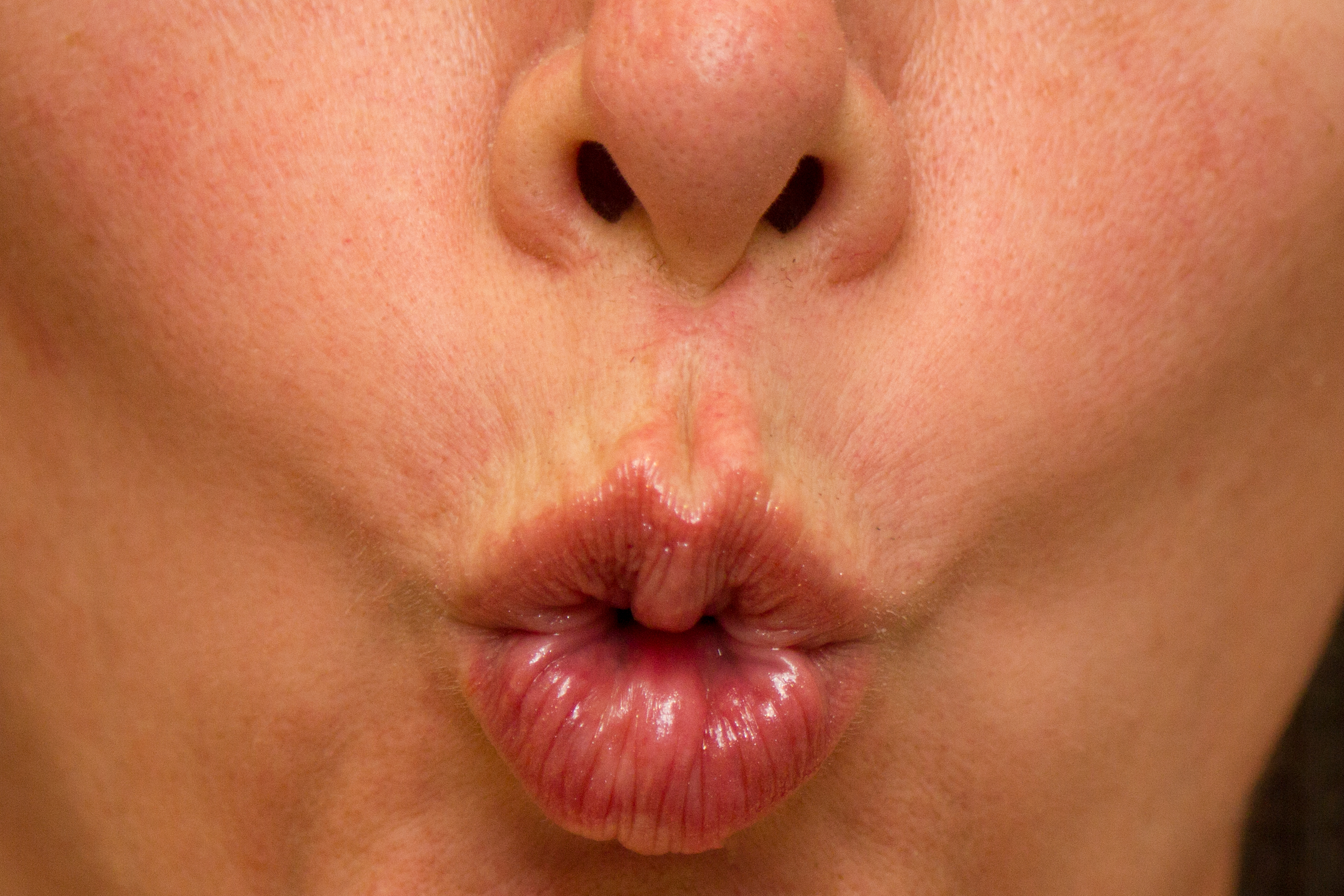 Facial Exercises For The Lips